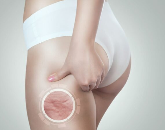 Woman shows cellulite on her thigh. Obesity treatment.